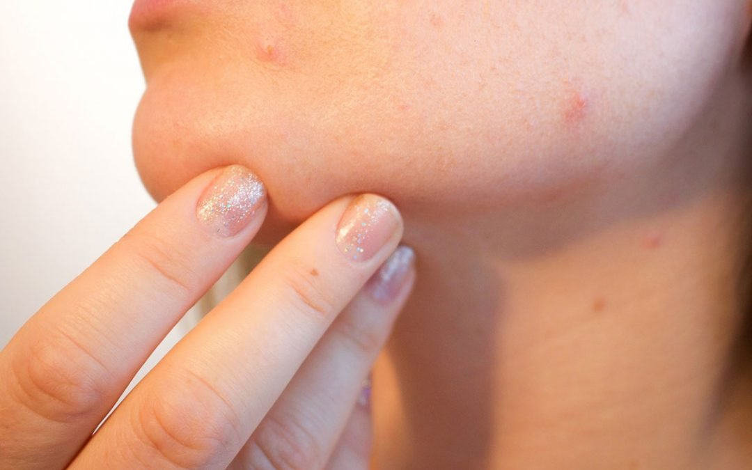 Understanding Teenage Acne